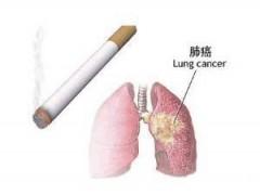 再立新功!施贵宝抗癌新药Opdivo成为第一个对肺癌有疗效的PD-1药物