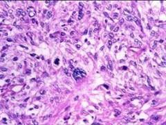 美国批准olaratumab一线药物治疗软组织肉瘤