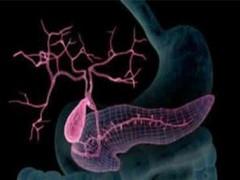 19届世界胃肠道肿瘤大会:电场疗法使胰腺癌无进展生存期增加一倍!
