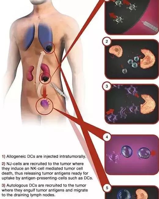 免疫细胞治疗
