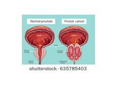 前列腺癌根治切除术后淋巴结阳性患者 不同术后治疗策略的生存结果分析研究