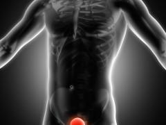 泌尿道感染症状持续存在可能导致膀胱癌