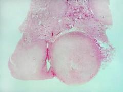 前列腺癌 线粒体基因组的重要性值得重视