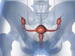 Prexasertib有望治疗BRAC野生型卵巢癌
