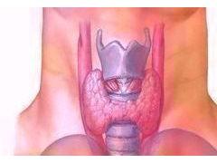 甲状腺乳头状癌双侧病变患者的预后更差