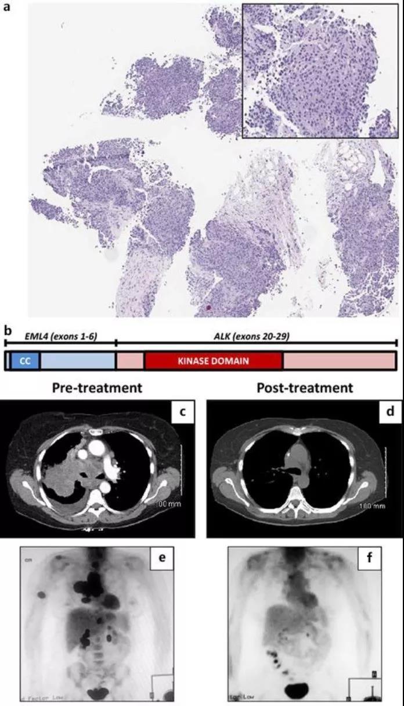 肺癌案例 肺癌故事