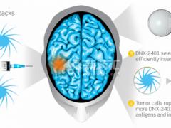 脑瘤延长生存期超过3年  得益于这种不寻常疗法