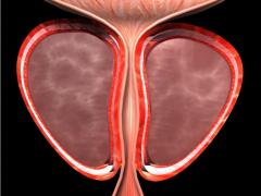 有了它 前列腺癌患者就知道是继续监测还是抓紧治疗了