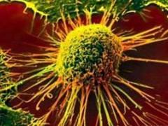 大麻有助于缓解肺癌治疗相关副作用?