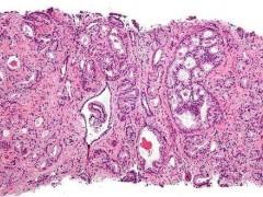 前列腺癌新药问世 平均疾病无进展时间达40多个月
