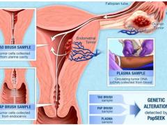 新研究|宫颈癌巴氏涂片标本可通过基因检测筛查其他妇科癌症