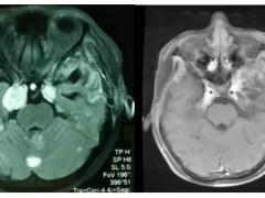 奇迹|15岁女孩脑瘤质子治疗三个月后肿瘤消失