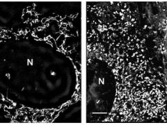 新发现:这些常见药可使前列腺癌细胞因能量耗尽而死