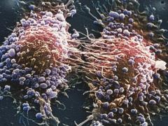 英国最新数据:25%的前列腺癌病例诊断时已晚期