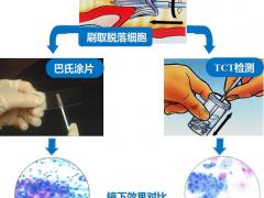 宫颈癌TCT检测比巴氏涂片更为先进、准确率高