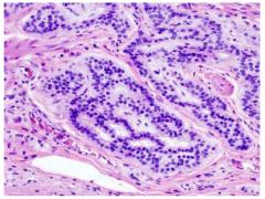 重大发现:这种基因突变与结肠癌发生相关
