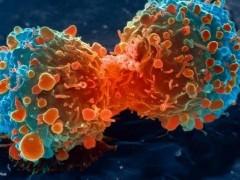 [抗癌突破]--AACR公布:又一免疫组合疗法显著改善肺癌无进展生存期!