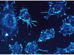 """癌症易转移到肝脏原来是因为这里有癌细胞爱吃的""""食物"""""""