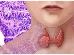 史上最大型的甲状腺癌研究发现新突变靶点 乐伐替尼可能成为靶向药
