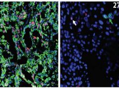 研究发现防止胰腺癌术后癌细胞转移的方法