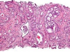 最新骨扫描软件能精准预测晚期前列腺癌的预后