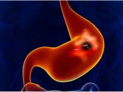 呼一口气就能测出来早期胃癌or食管癌