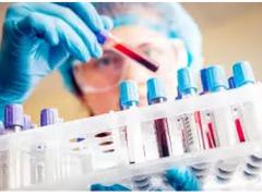 梅奥诊所研究:DNA检测能够发现早期肝癌
