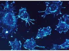 前列腺癌局部复发冷冻消融术或许是最佳选择