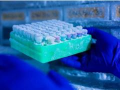 如果有这六种基因突变  患胰腺癌风险会很高