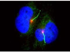 结直肠癌靶向药如何选择   基因检测不可或缺