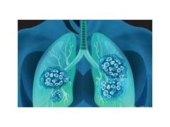 肺癌患者使用PD-1需要注意的十大问题!
