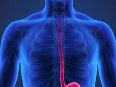 美国公布  食道癌的饮食、营养、运动建议(第三版癌症预防报告)