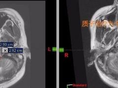 脑干胶质瘤小伙子治疗9个月症状完全消失  质子治疗功不可没