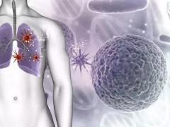 第六期北肿抗癌大讲堂--肺癌知识漫谈!
