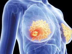 美国癌症研究院最新公布:降低乳腺癌风险的生活方式和食物!