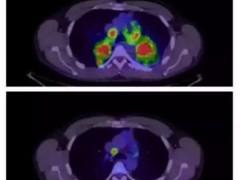 一文总览|2018肺癌靶向治疗及免疫治疗进展!