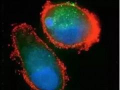 2019脑瘤全球最新研究进展盘点及临床试验推荐!