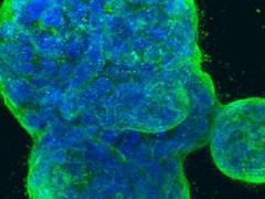 乳腺癌患者新希望!针对HER2蛋白的乳腺癌疫苗VRP-HER2横空出世!