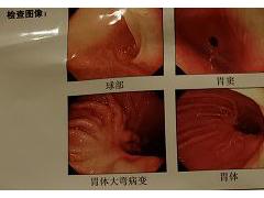 晚期胃癌病灶全部清除,免疫治疗功不可没!