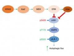 新型间皮素特异性CAR-T疗法有望治疗胰腺癌!