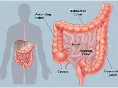 结直肠癌患者注意!病灶发生在左侧和右侧治疗方案竟截然不同