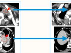 食管癌树突状细胞疫苗,食道癌树突细胞免疫疗法,食管癌树突状细胞免疫疗法