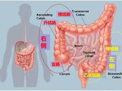 2019最新指南:左右侧结直肠癌用药方案大不同!千万搞清楚是哪侧