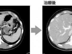 晚期胰腺癌女强人重回职场,因为体内多了这种最强的免疫细胞