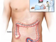 三位患肠癌的年轻人警告:这几个最容易忽略的早期症状一定要注意