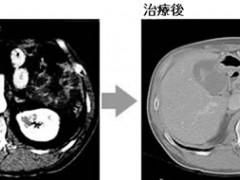 癌王也有软肋,胰腺癌这样治疗后肿瘤病灶消失2/3