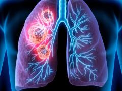 晚期肺癌肿瘤消失,他只用了这样的治疗方案