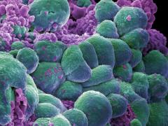 小细胞肺癌30多年无新药,德鲁单抗闪亮登场,拯救于水火