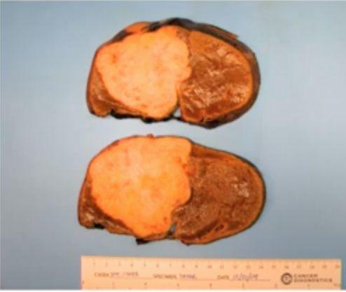 切除了三分之二含有癌性胆管部分的肝脏