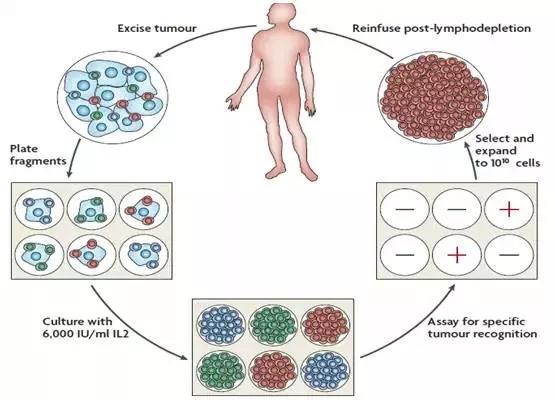 TILs疗法的治疗过程